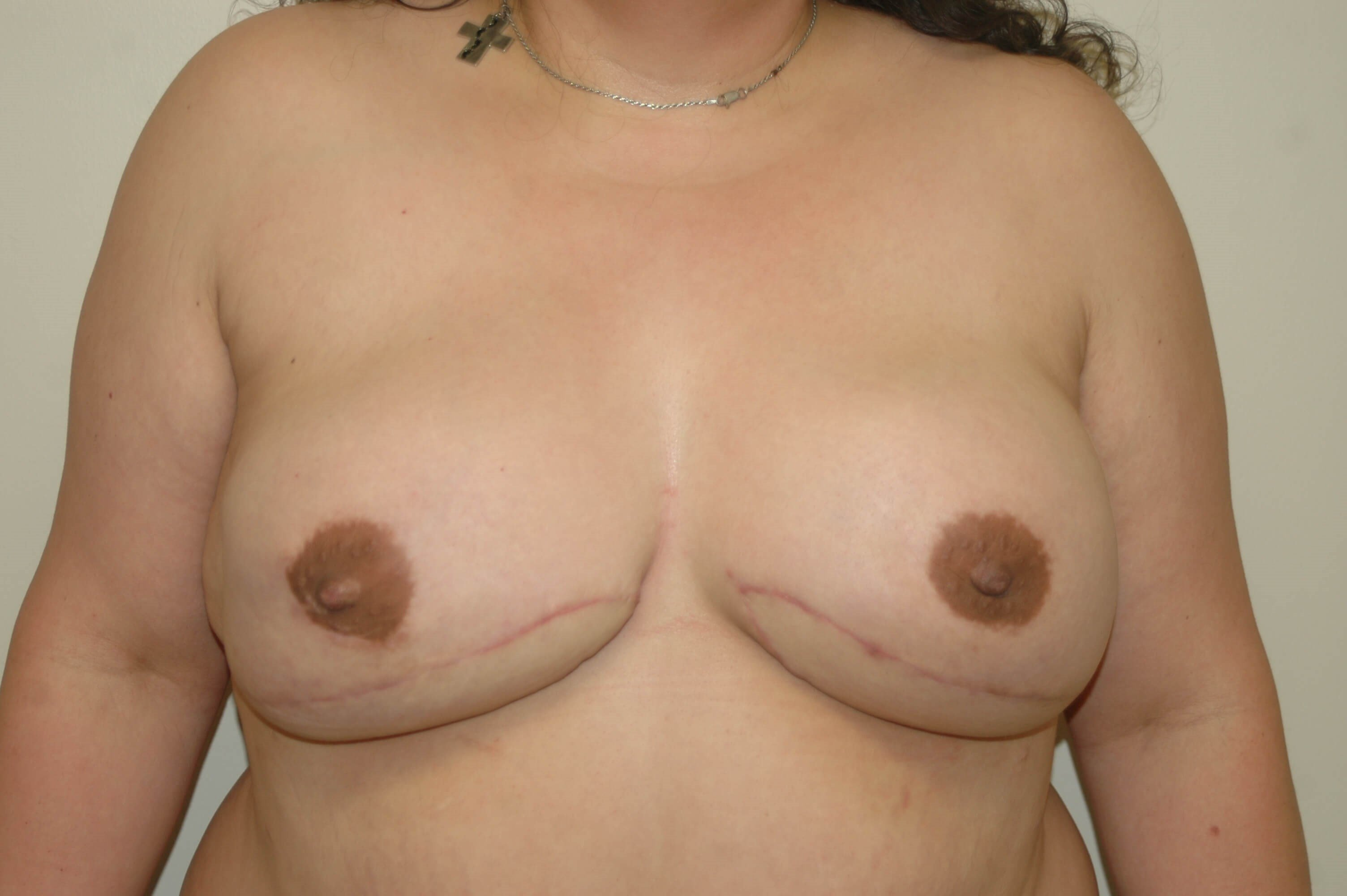 DIEP Breast Reconstruction After