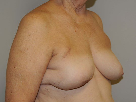 Implant Breast Reconstruction Before
