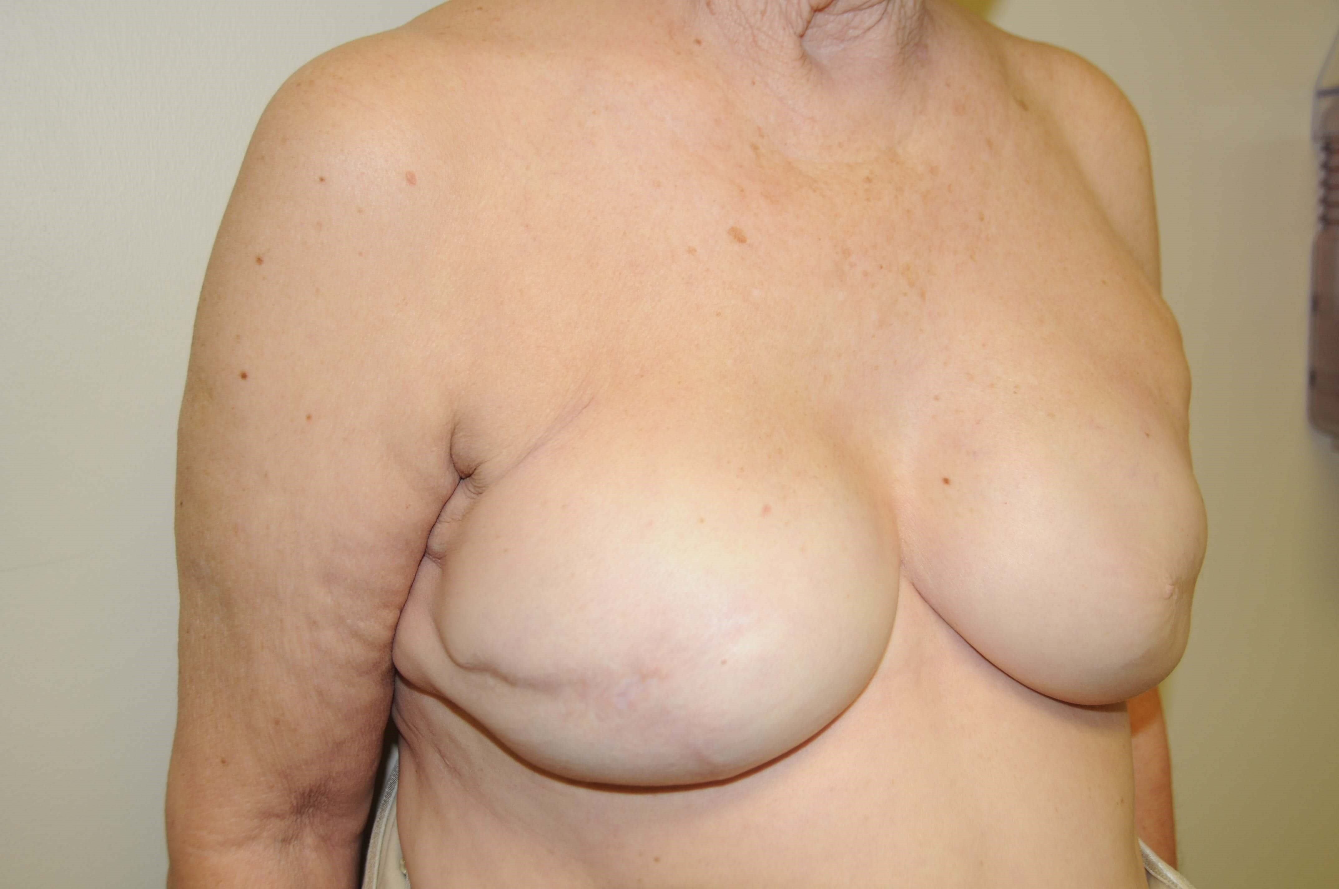 Implant Breast Reconstruction After