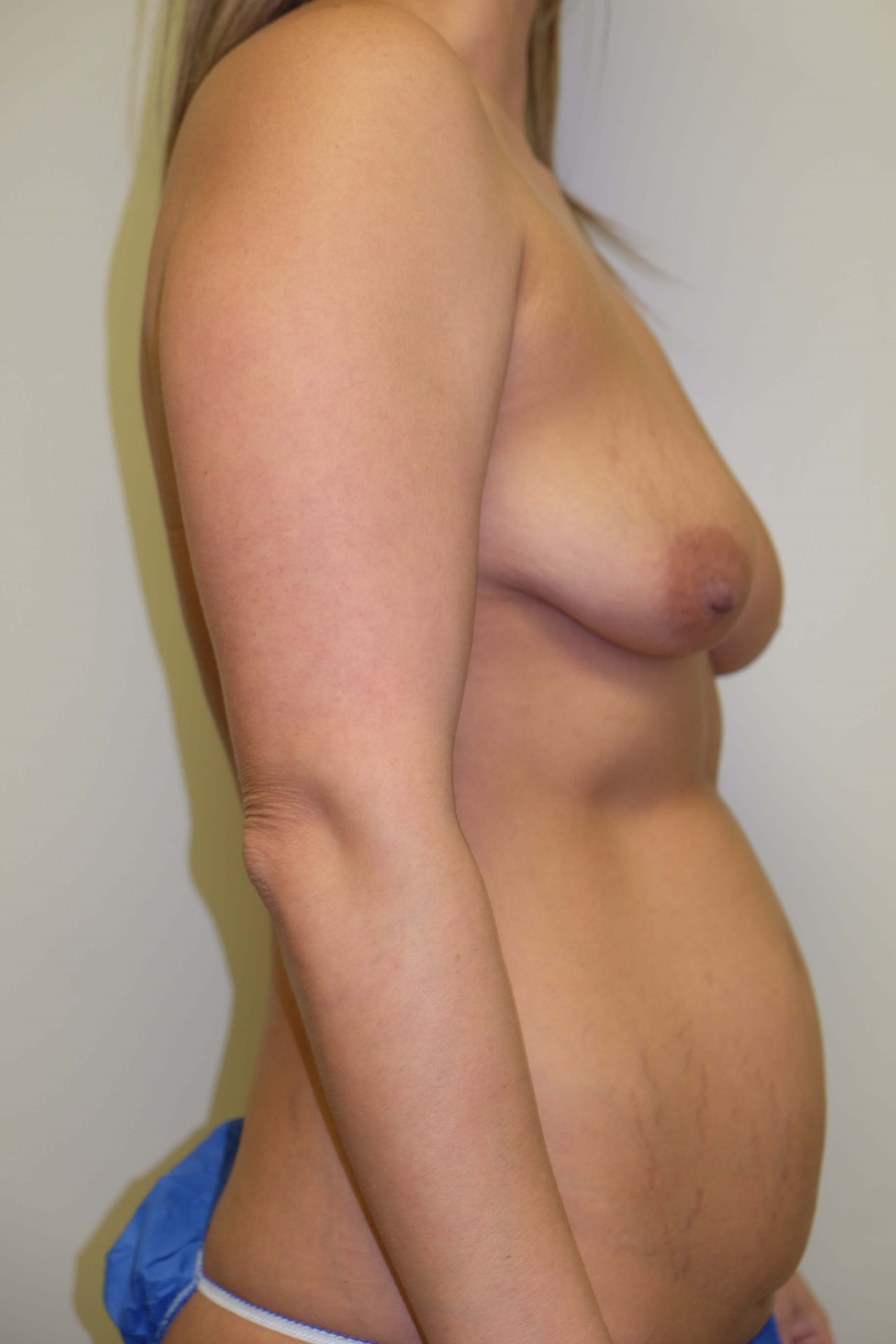 Breast and  Abdomen Surgery Before