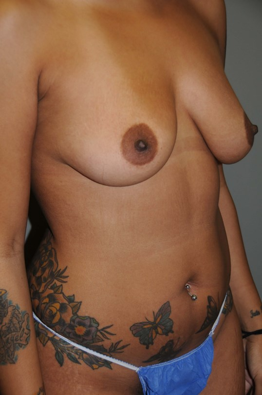 Breast Aug  Body Liposuction Before
