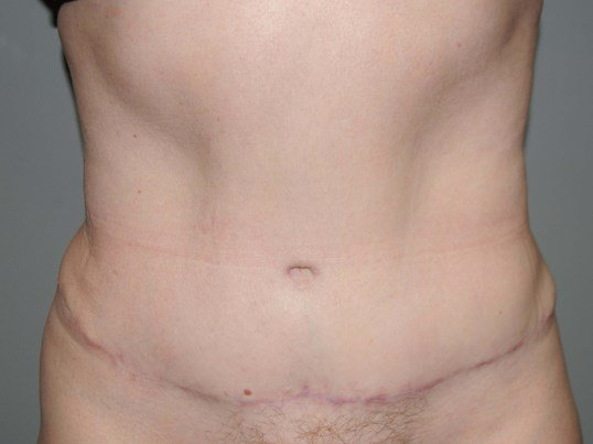 39 yo with heavy abdomen After