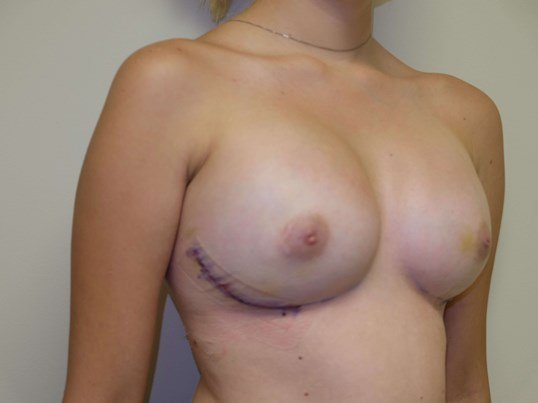 Pre-pectoral Breast Recon. 2 weeks post-op