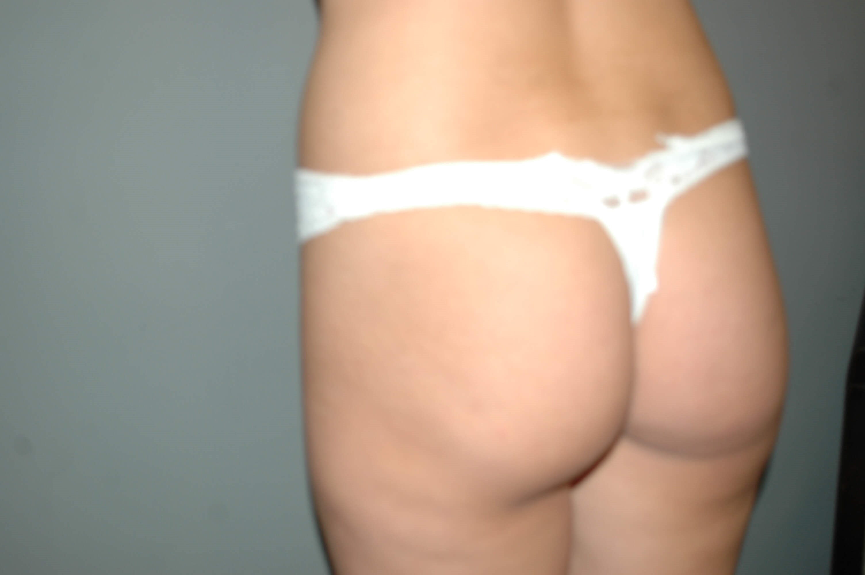 Buttock Implant Augmentation Before