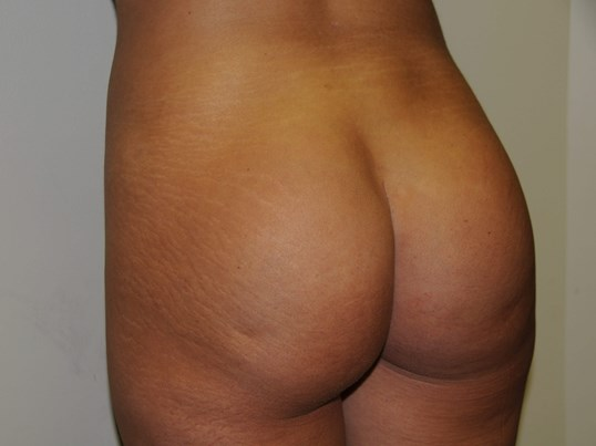 Buttock Implant Augmentation After