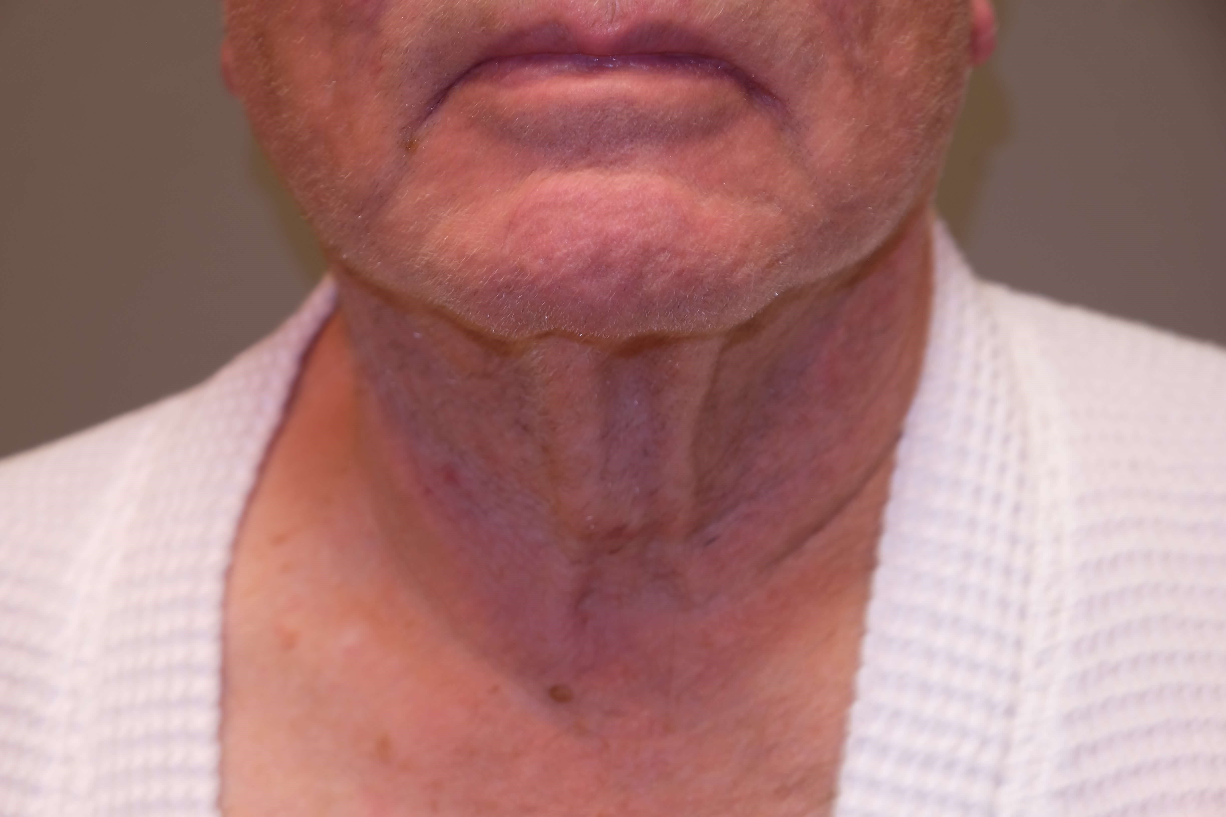 Male NeckLIFT Before
