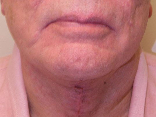 Male NeckLIFT After