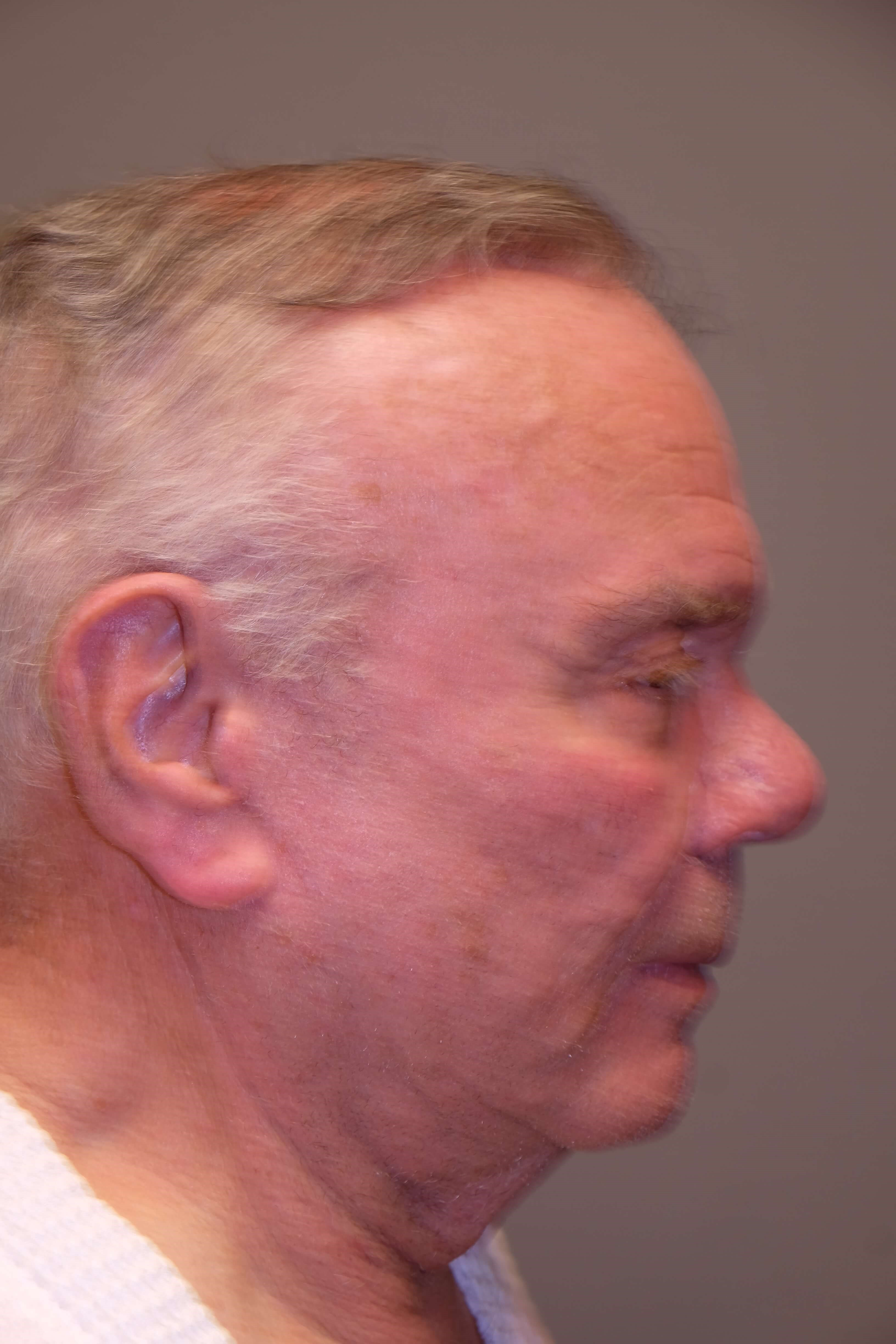 Direct Male Necklift Before