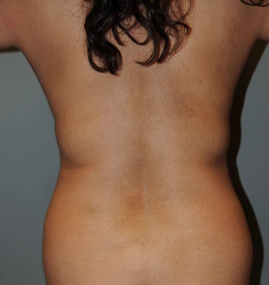 Fatty back,waist,and abdomen Before