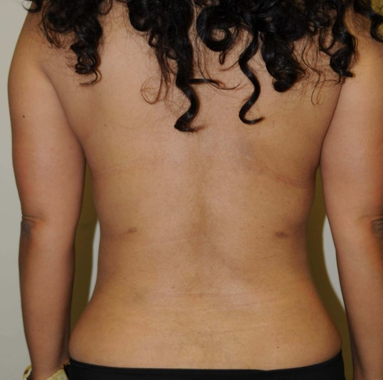 Fatty back,waist,and abdomen After