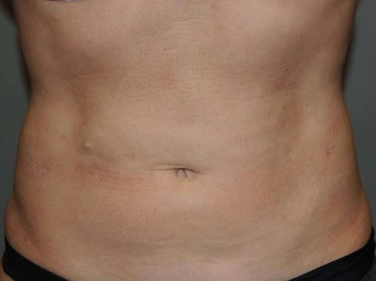 Abdominal Etching After