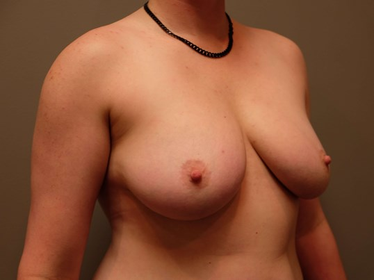 Transgender Top Surgery Before