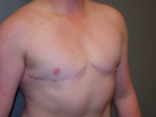 Transgender Top Surgery After