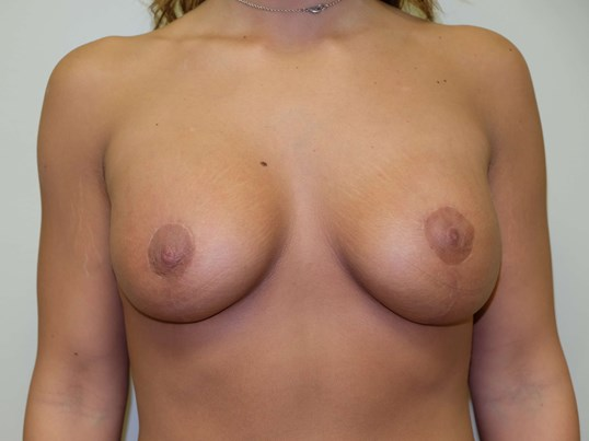 Breast Augmentation and Lift After