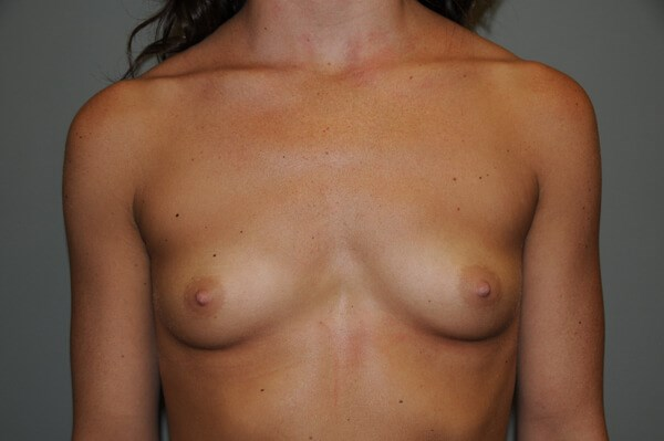 Breast Augmentation 3 Before 32 A breast
