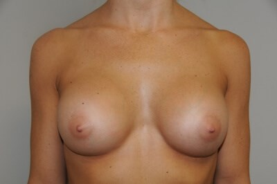 Breast Augmentation 3 After 32 full C breast