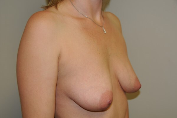 Breast Augmentation and Lift Before 34  B cup