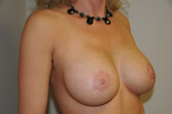 Breast Augmentation and Lift After 34 small D cup
