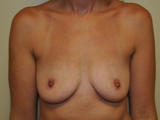 Breast Augmentation Before 36 B