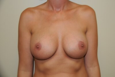Breast Augmentation After 36 full C