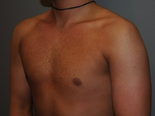 Male Pectoralis Implants Before
