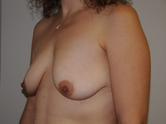 Breast Augmentation and Lift Before