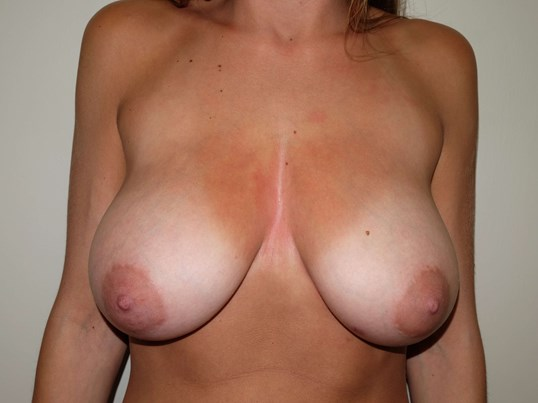 Breast Reduction Beforeull C
