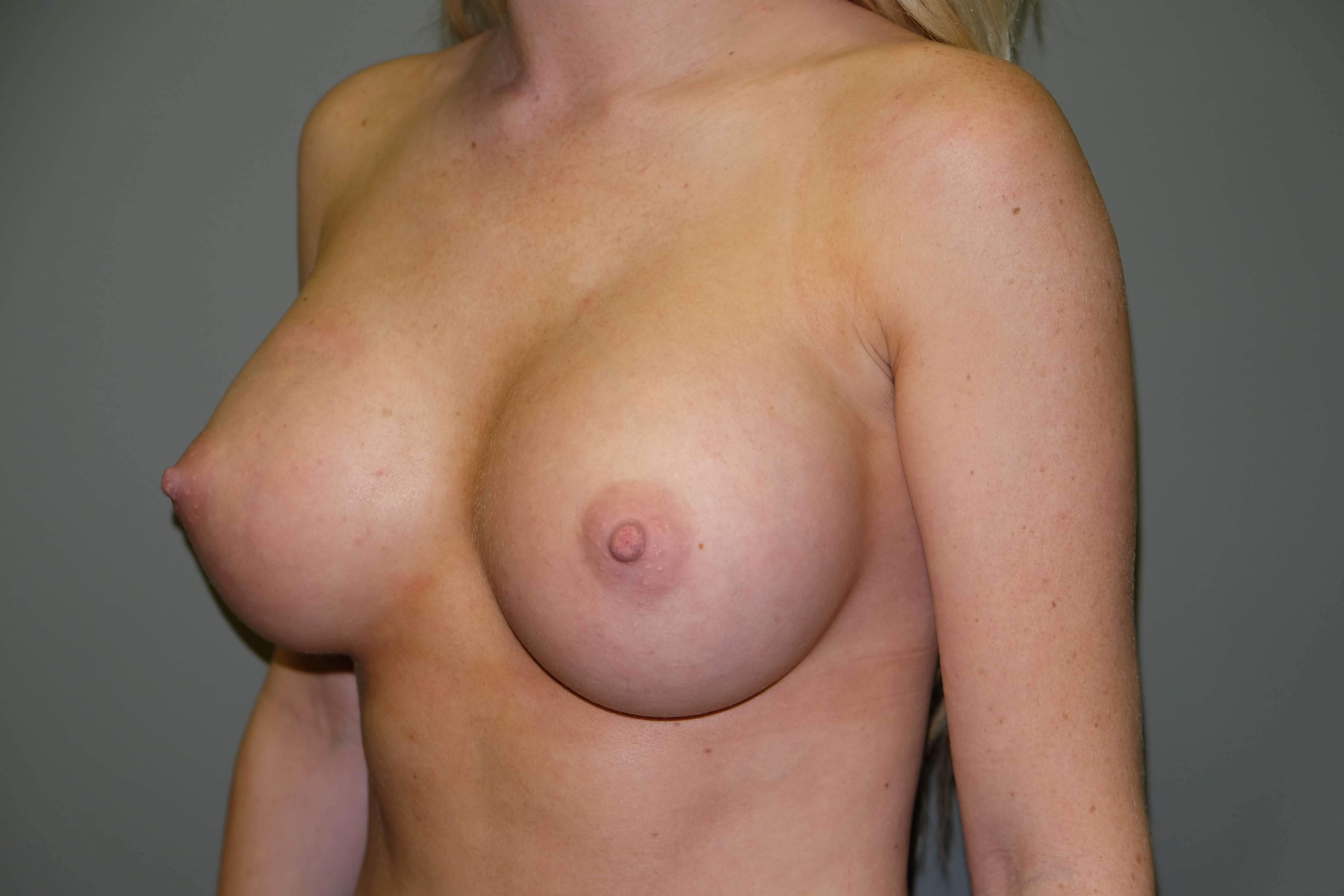 Breast Augmentation in 22 yo After