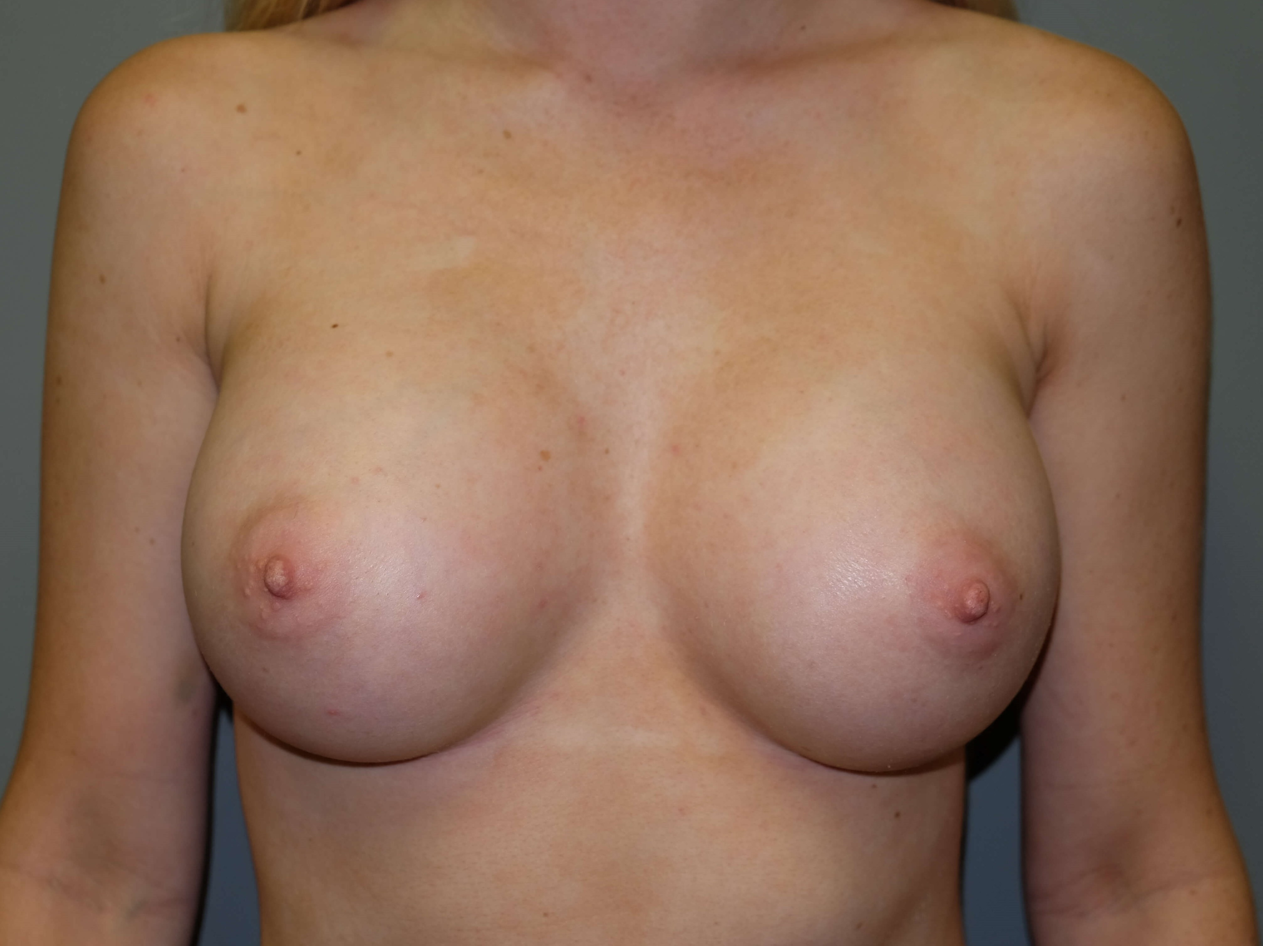 Breast Augmentation After 34 normal D cup