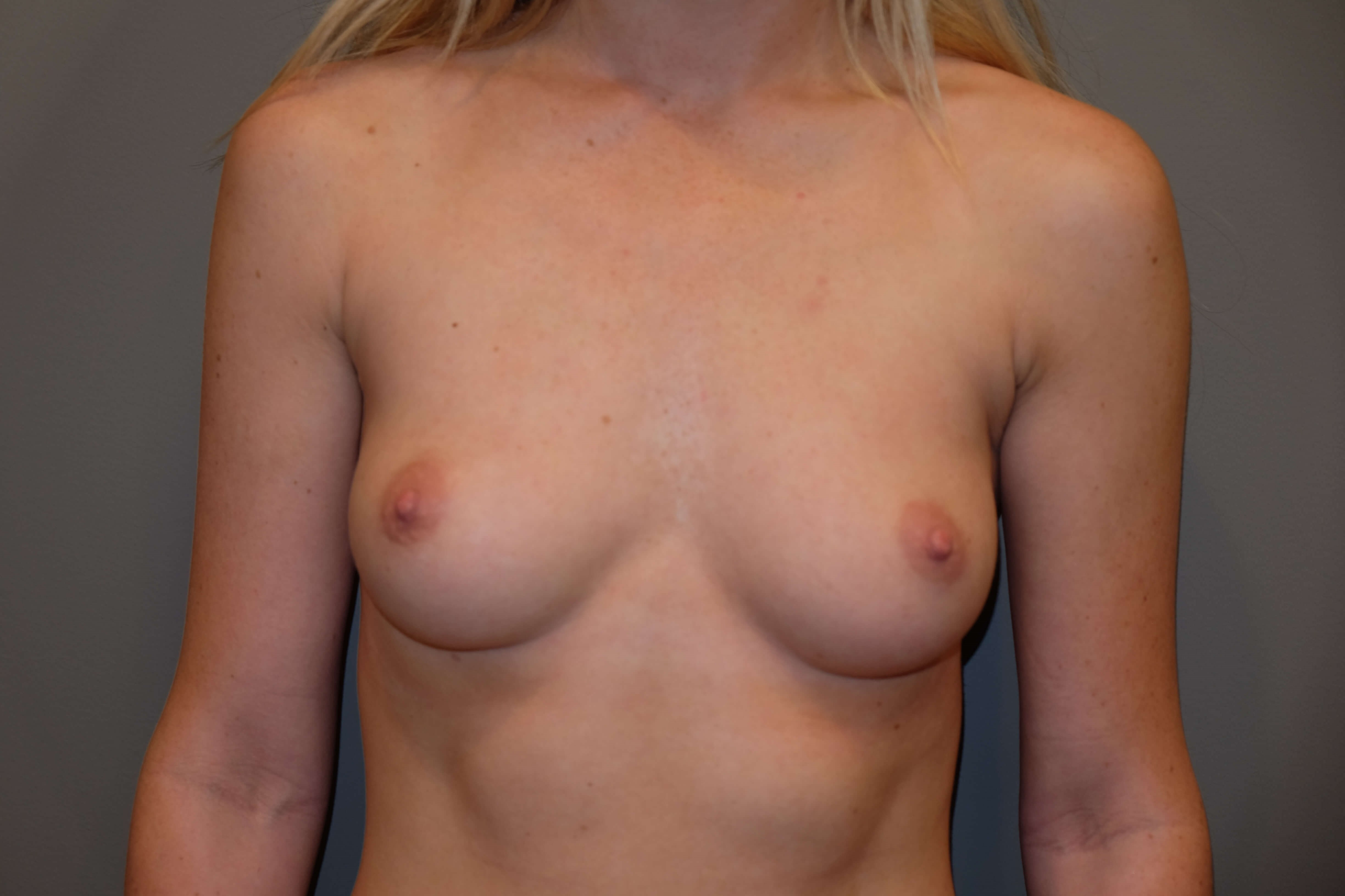 Breast Augmentation Before 34 full B cup