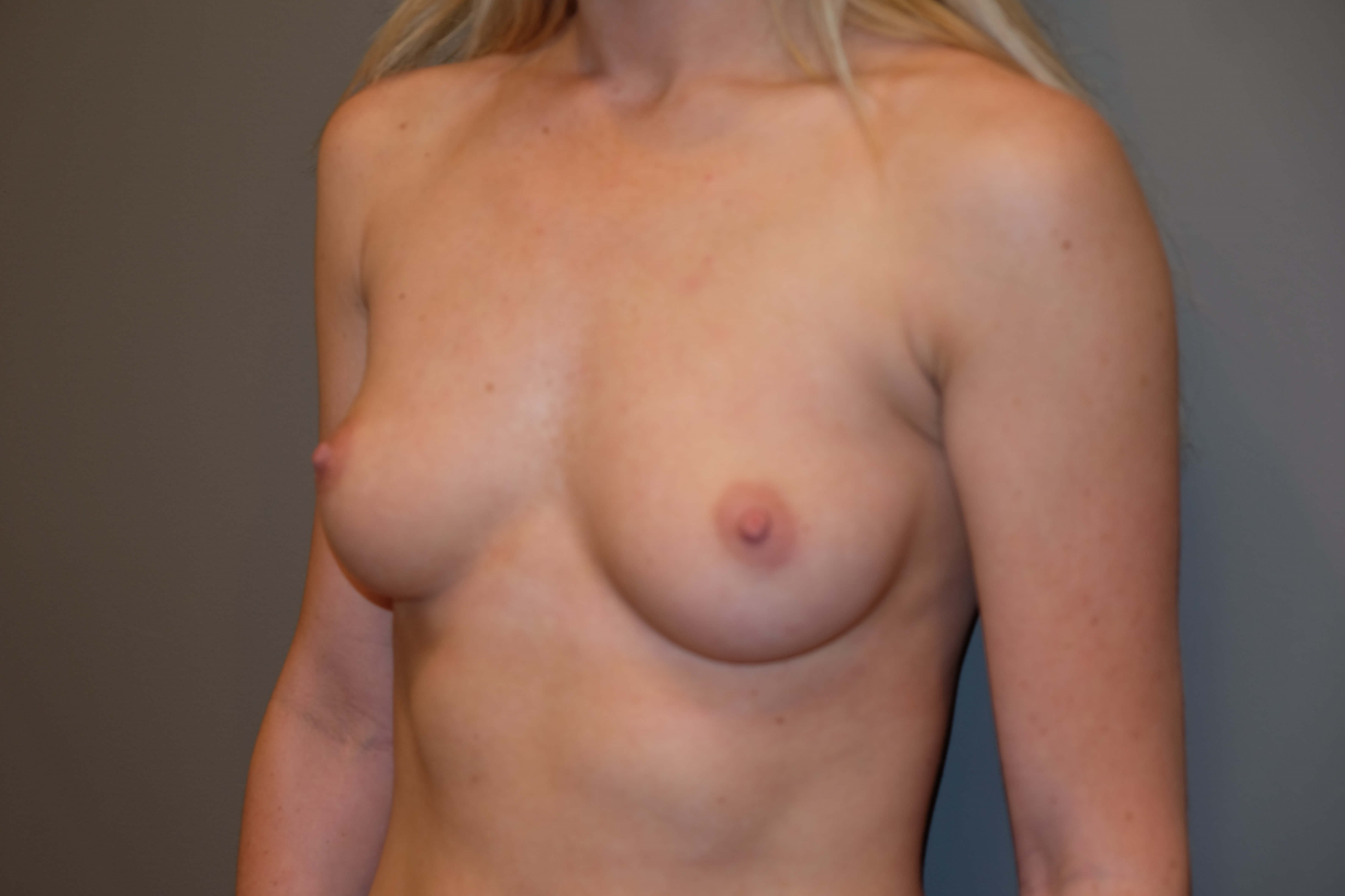 Breast Augmentation in 22 yo Before