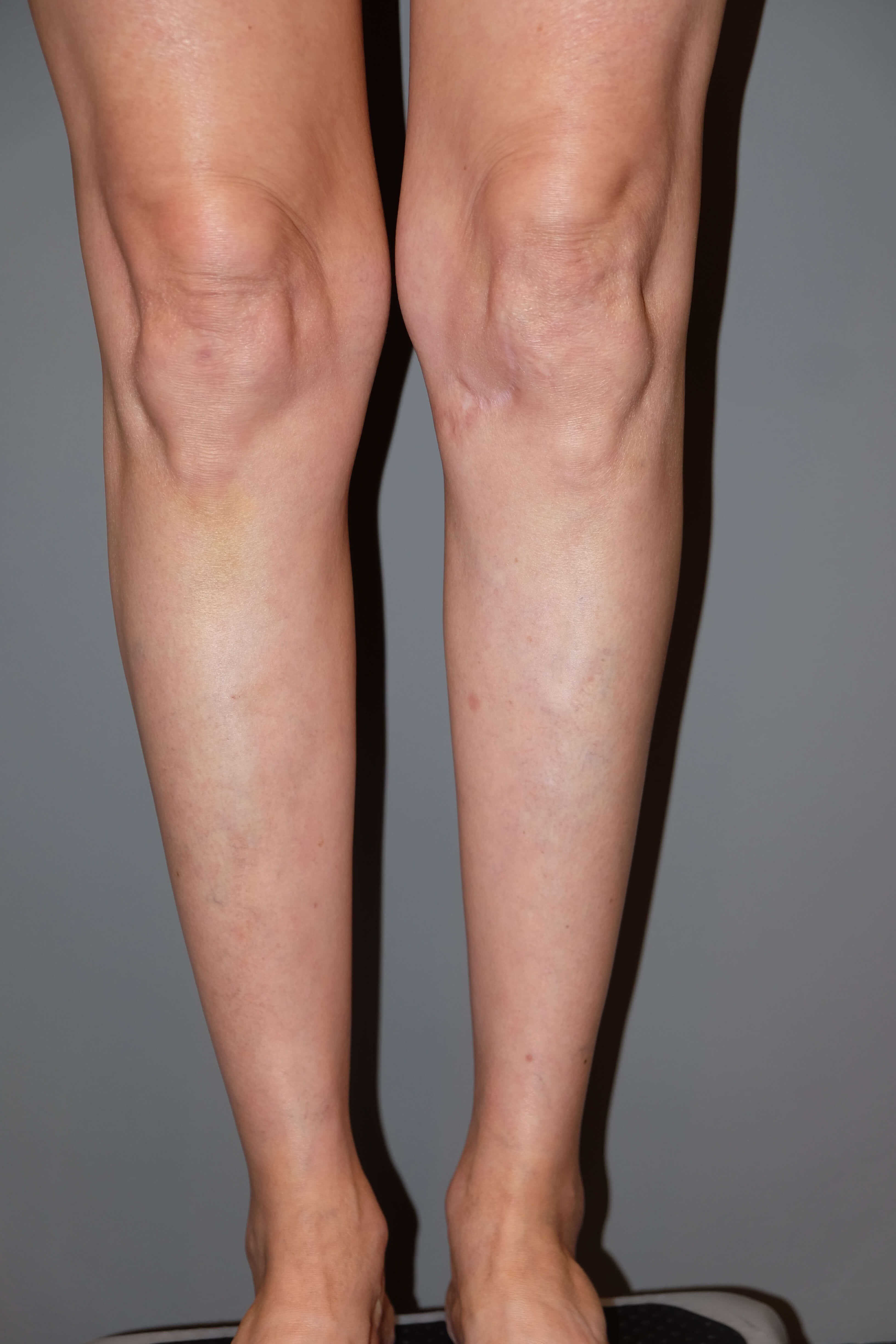 Calf Implants Before