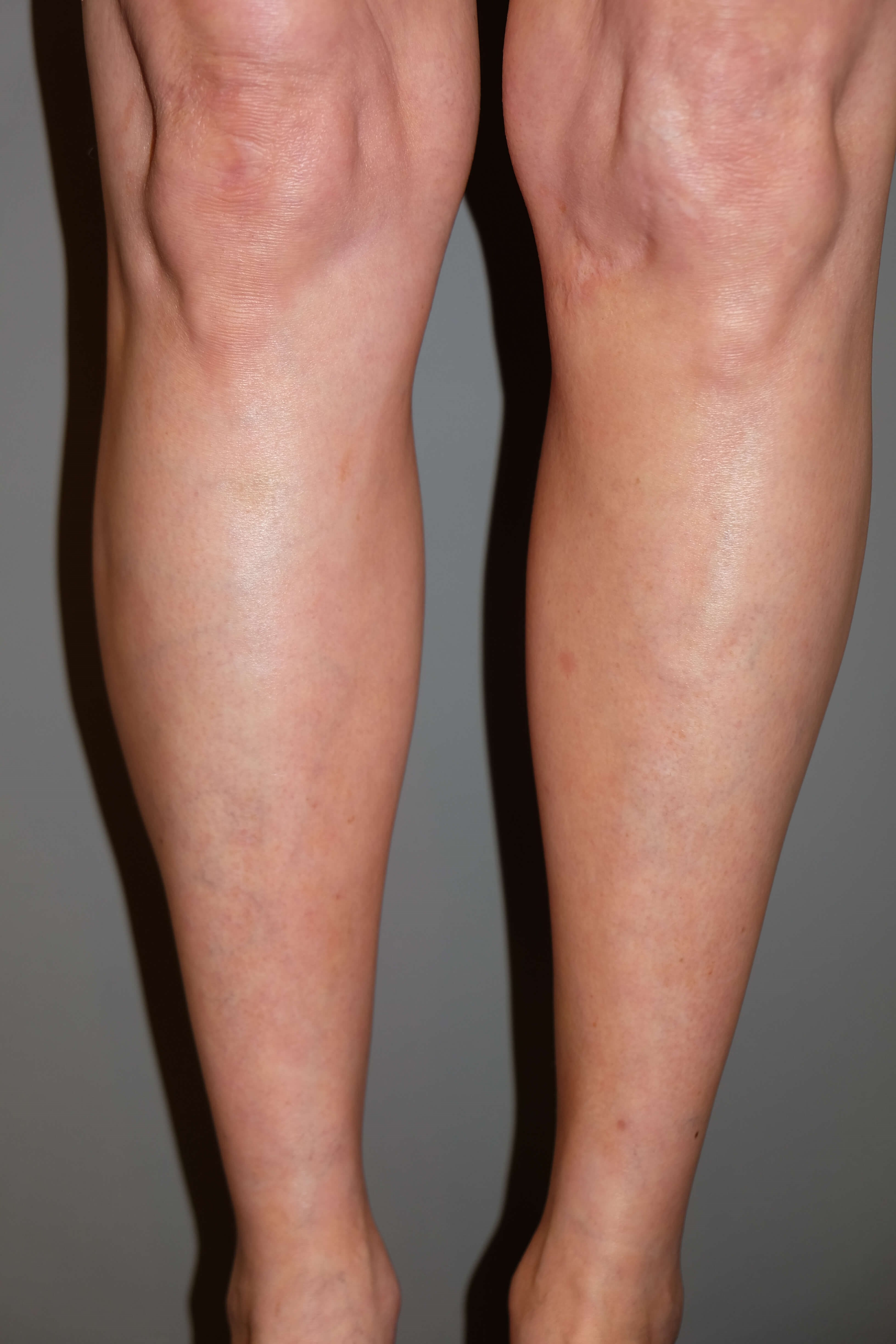 Calf Implants After